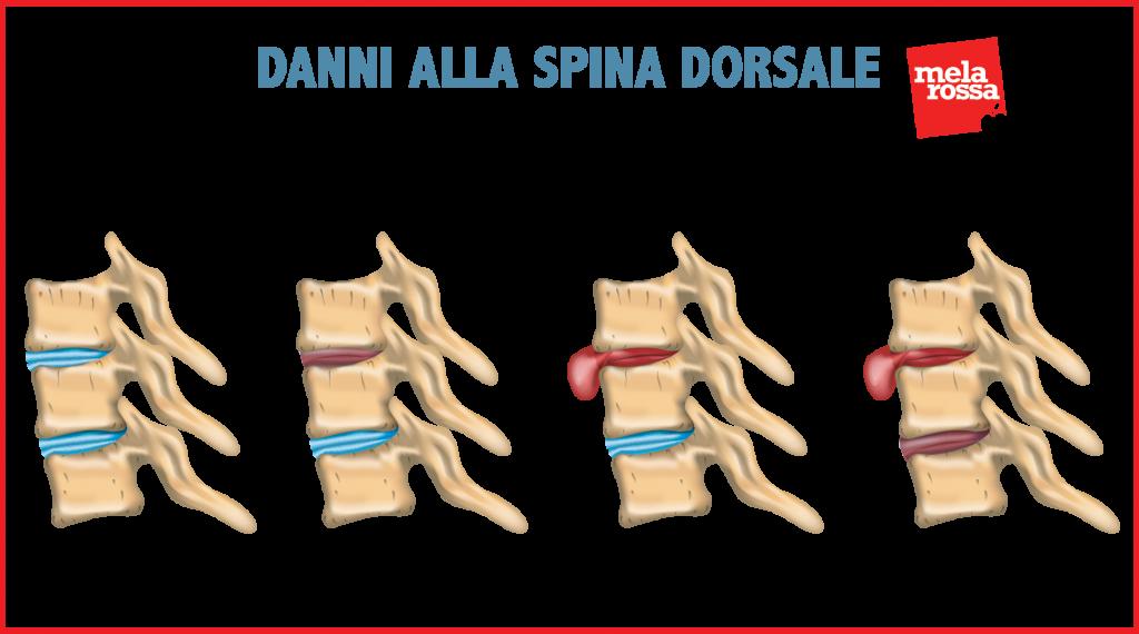dolor lumbar: hernia de disco